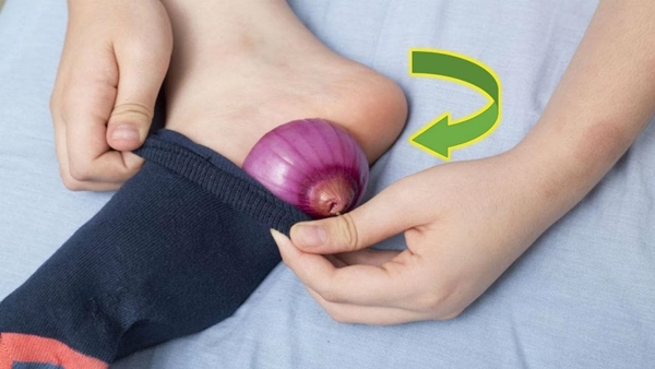 health benefits of onions 1